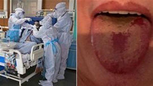 صورة احذر منها.. أعراض جديدة لفيروس كورونا في الفم
